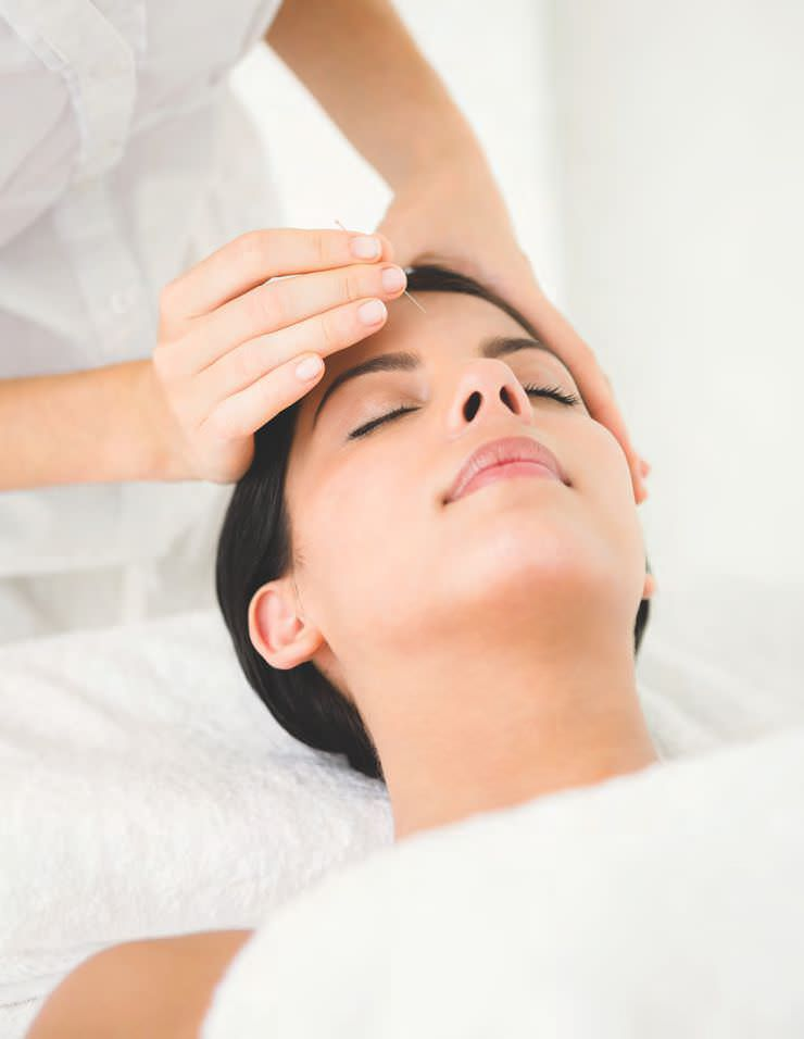 Is Facial Acupuncture The New Trend?